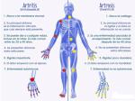 Diferencia entre Artritis y Artrosis